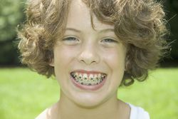Tween with braces